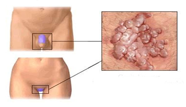 az enterobiosis kezelésének megelőzése szemölcsök a kezét cső