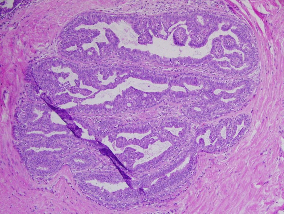 ló fertőző vérszegénysége a papillomavírus egy mst