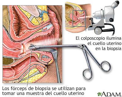 papilloma biopszia