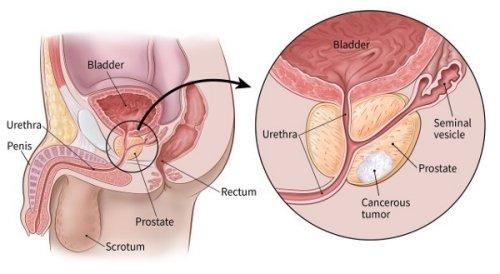 prosztata rák gyógyítása