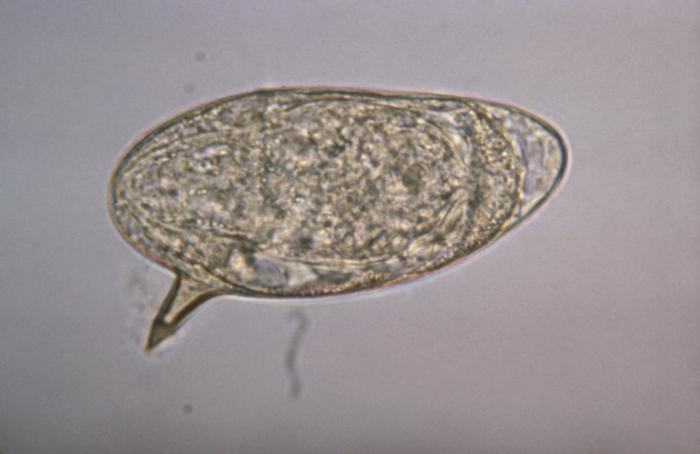 Klinikai vizsgálatok a Schistosomiasis mansoni - Klinikai vizsgálatok nyilvántartása - ICH GCP