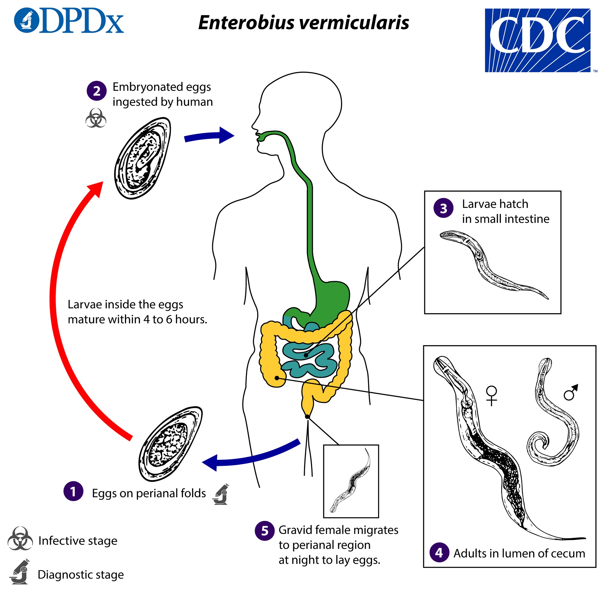 enterobiasis enterobius vermicularis pinworm-láz