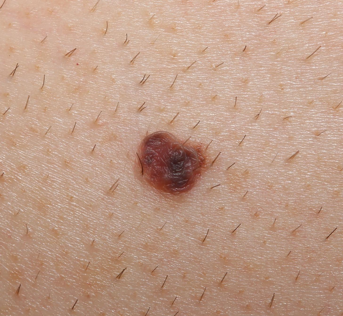 A melanoma rizikófaktorai