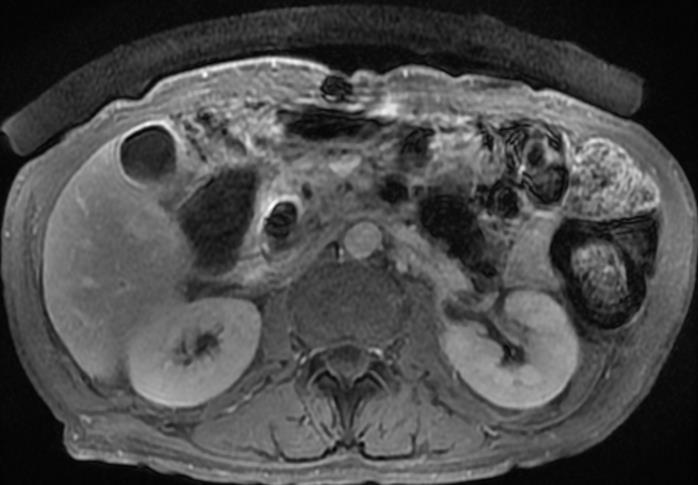 kolorektális oligometasztatikus rák