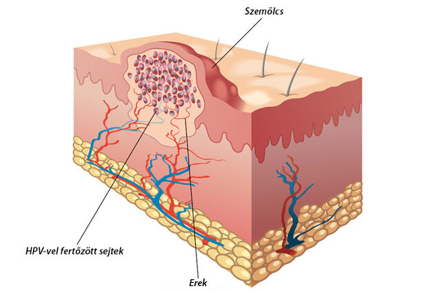 szemölcsök közben húgyúti fertőzés pinworms által