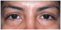 Kisebb szemészeti műtétek   Med-Aesthetica