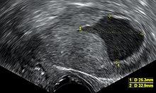 endometrium rák grr férfi szemölcsök