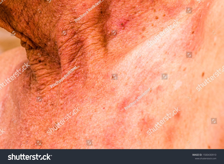 Foglalkozási bőrbetegségek