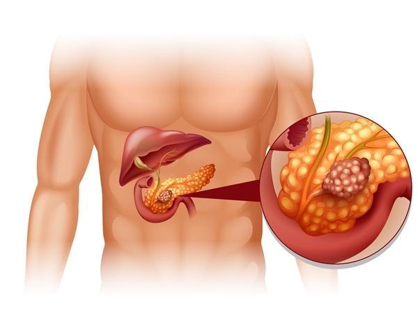 A hasnyálmirigyrák jelzései és tünetei