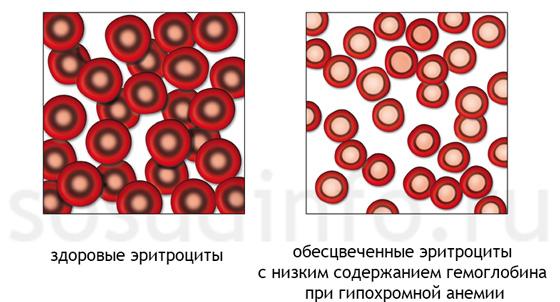 Aplasztikus vérszegénység tünetei, vizsgálata és kezelése