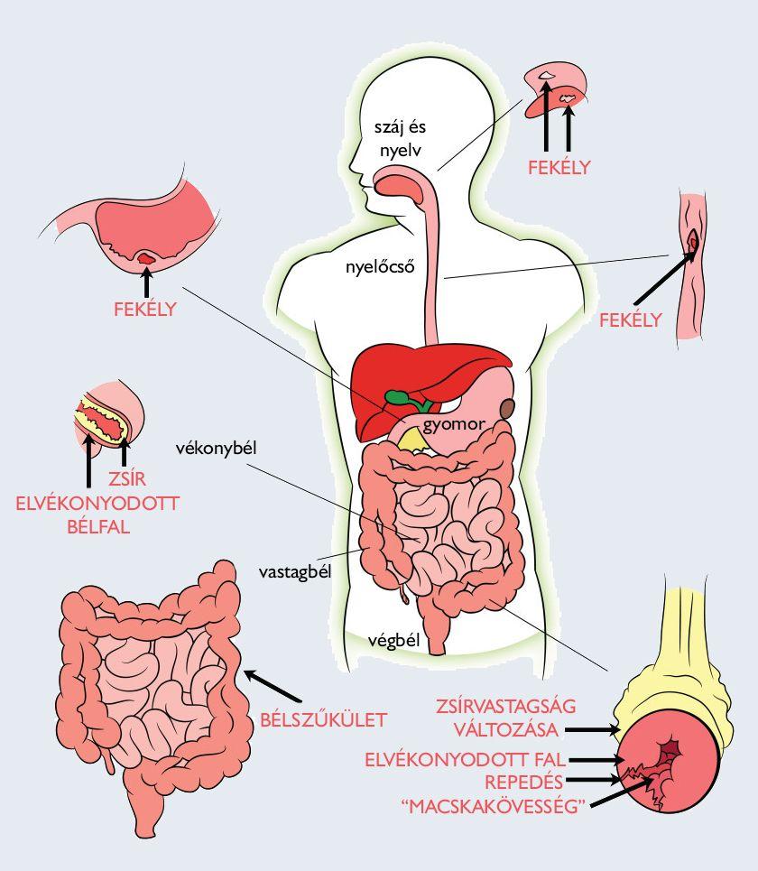 Gyógymódok a test parazitáihoz Egy új gyógyszer az emberi test parazitáira