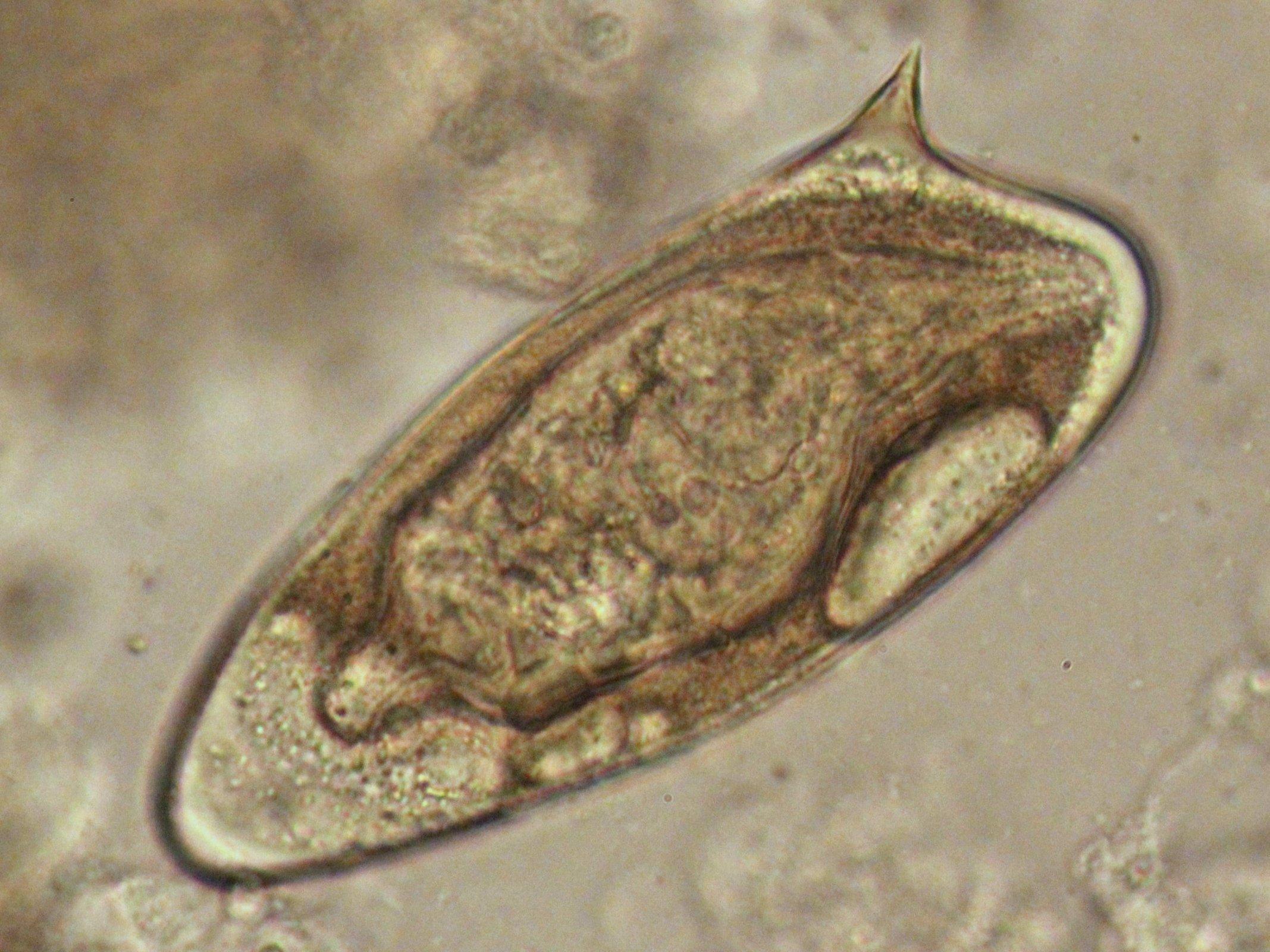 mansoni schistosomiasis enterobius-tojás