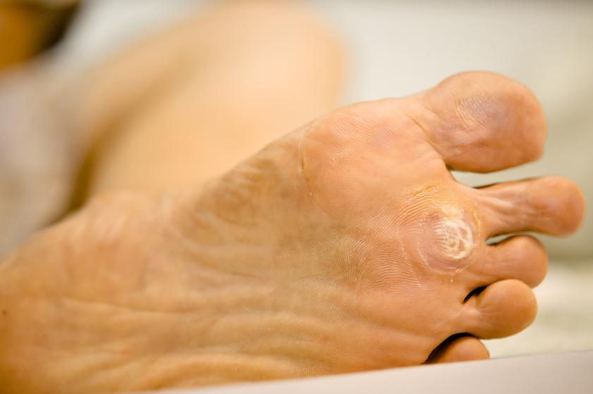 méregtelenítő kiegészítő mester étrend-kiegészítő meddig tart a férgek kezelése