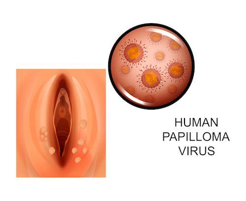 papilloma vírus liecba endometrium rák fiatal betegeknél