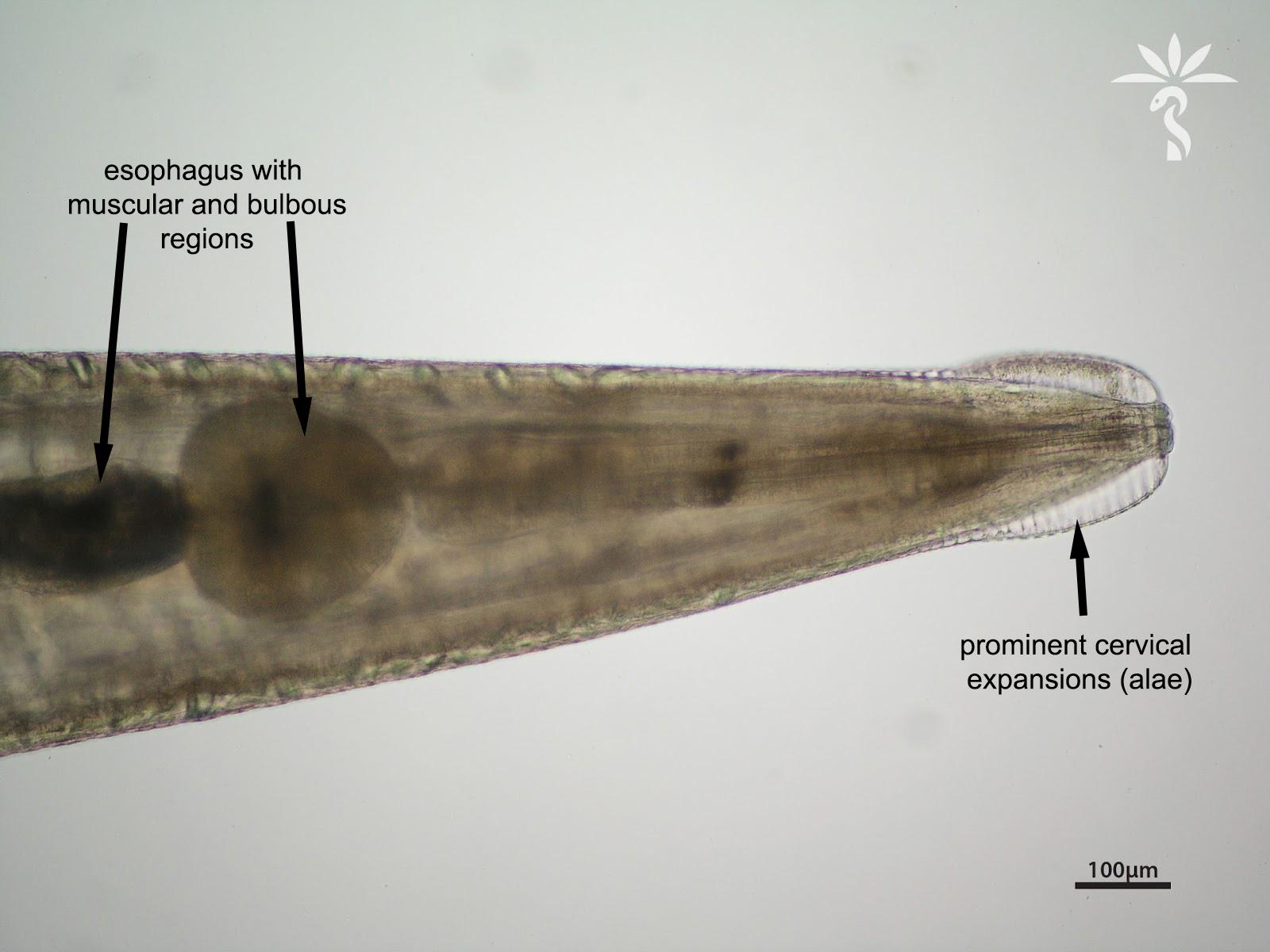 enterobius vermicularis haha