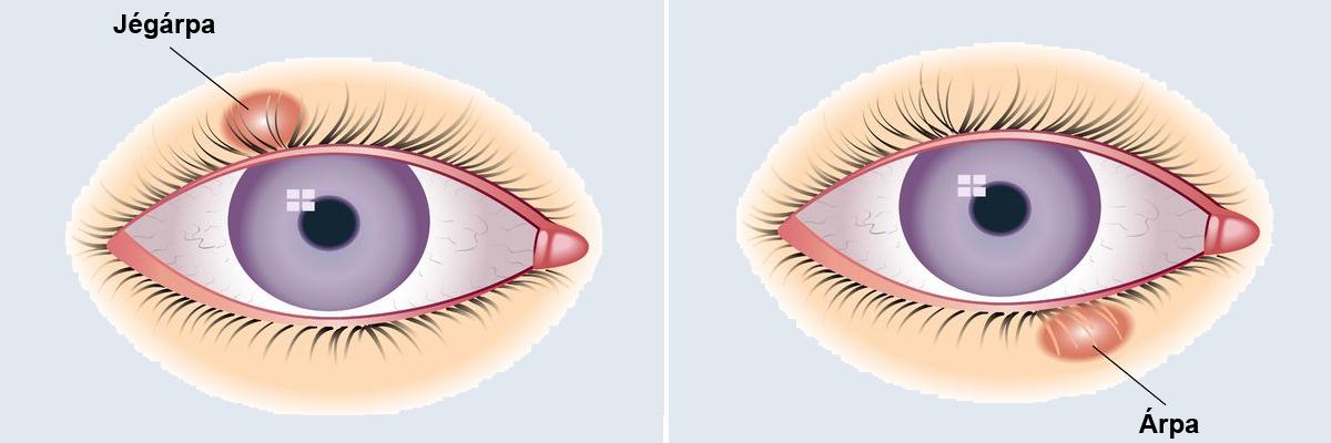 Condyloma a szem körül. Tájékoztató a condyloma (HPV szemölcs) kezeléséről, eltávolításáról