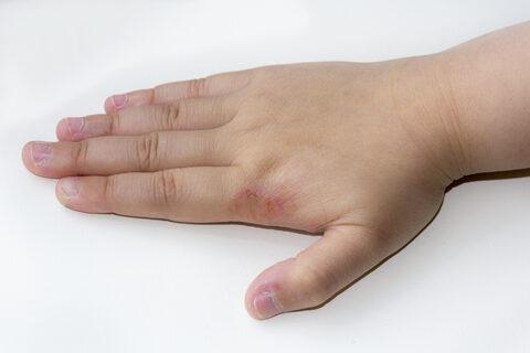 Kézszáraz bőrkezelés
