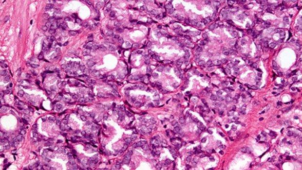 készítmények mindenféle helmintákhoz intraductalis papilloma b2