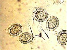 Pinworms kezelése: tünetek és gyógyszerek Az enterobiosis és a féreg tojás ugyanaz