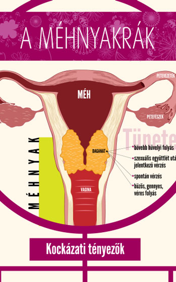 Fájdalmas, késik, kimarad - A menstruációs zavarokról