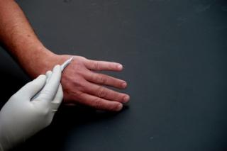 Gyöngyös papulák: fotó, okok, kezelés - Bőrgyulladás October
