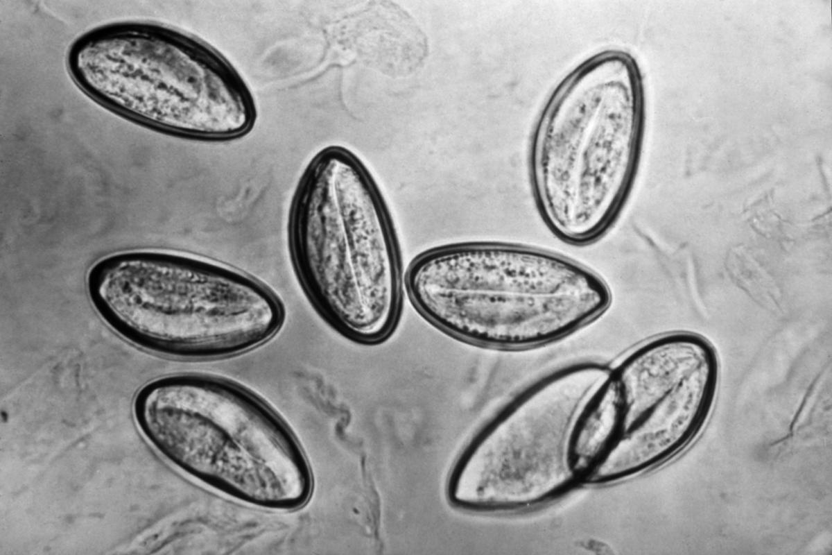enterobius vermicularis nőstény