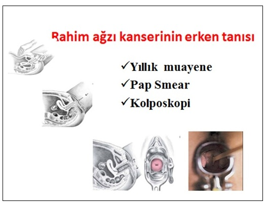 a genitális szemölcsök elektrokoagulációja