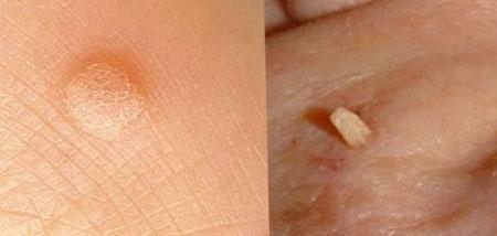 laktáló paraziták papilloma pigmentfoltok