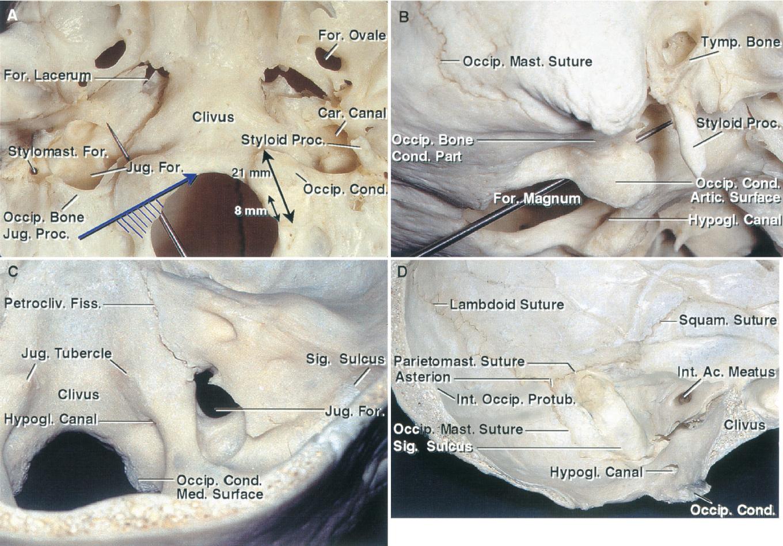 Betekintés: A fül anatómiája és élettana, a külsőfül betegségei, hallójárati idegentestek