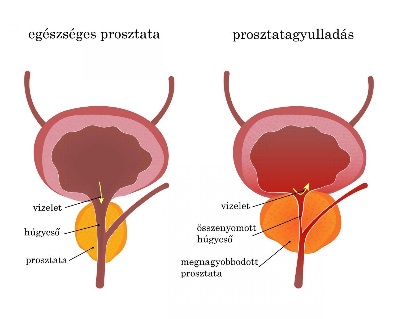 Prosztata-megnagyobbodás tünetei és kezelése - HáziPatika