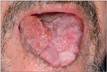 papilloma és rosszindulatú daganat