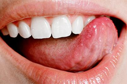emberi papillomavírus hpv száj