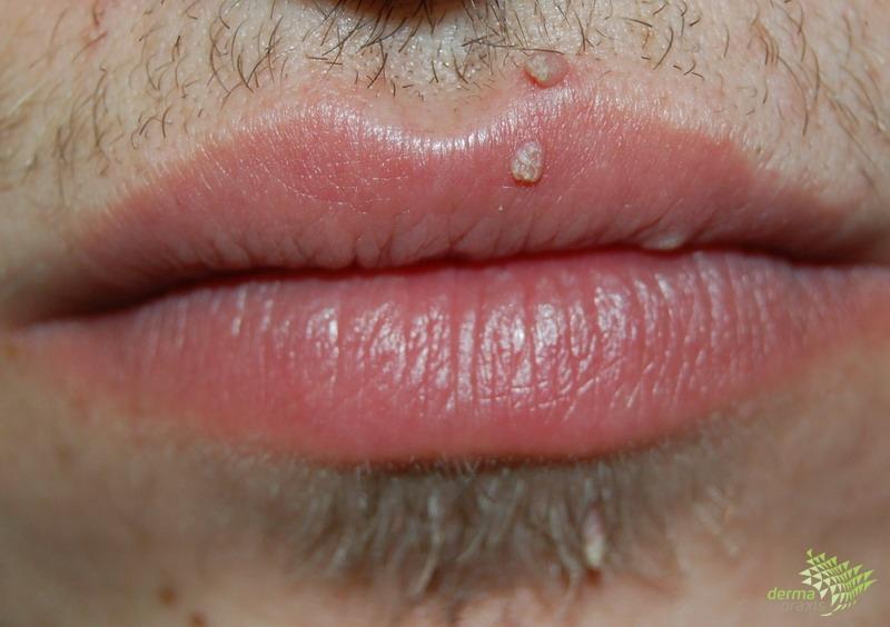 condyloma acuminata száj