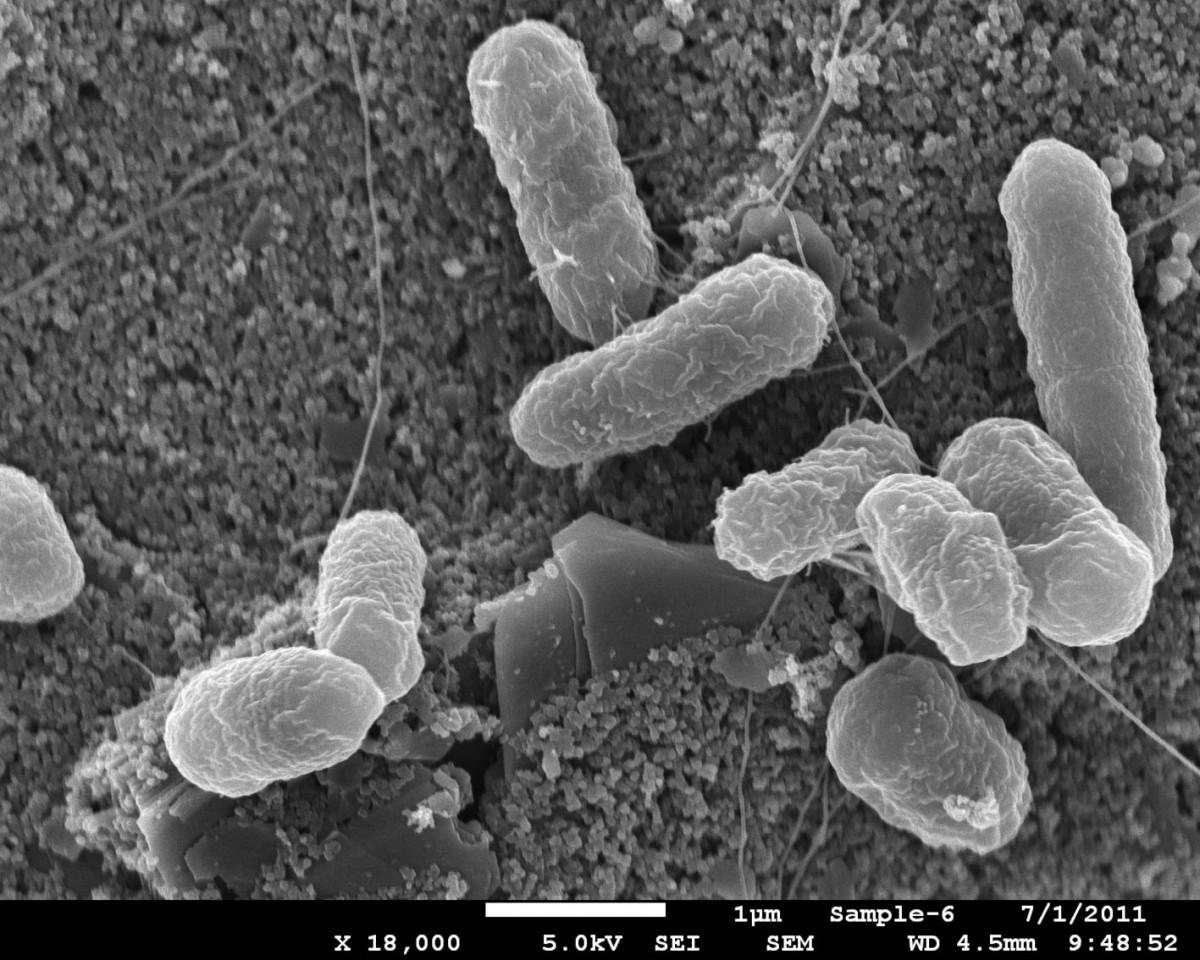 A paraziták világa. Toxinok és paraziták tisztítása
