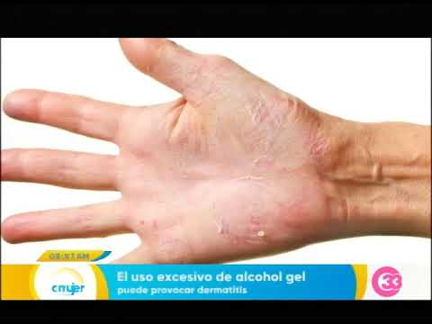 helmint dermatitis