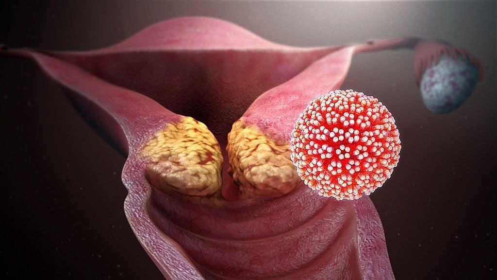 a papilloma vírus veszélyes férgek az arcon, mint öröm