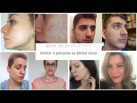 Pattanás? 12 fontos válasz a bőrgyógyásztól
