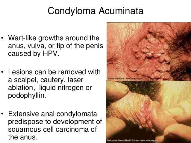 condyloma acuminata hiv humán papilloma vírus kiújulása
