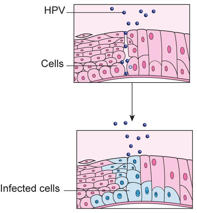 gyógyítsa a HPV-t örökké