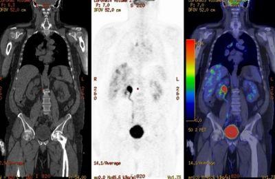 Vastagbélrák CT eredménye | Rákgyógyítás
