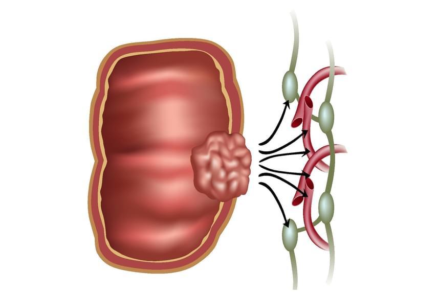 Sztómáról, nem csak sztómásoknak, egy sztómás személy szemüvegén keresztül