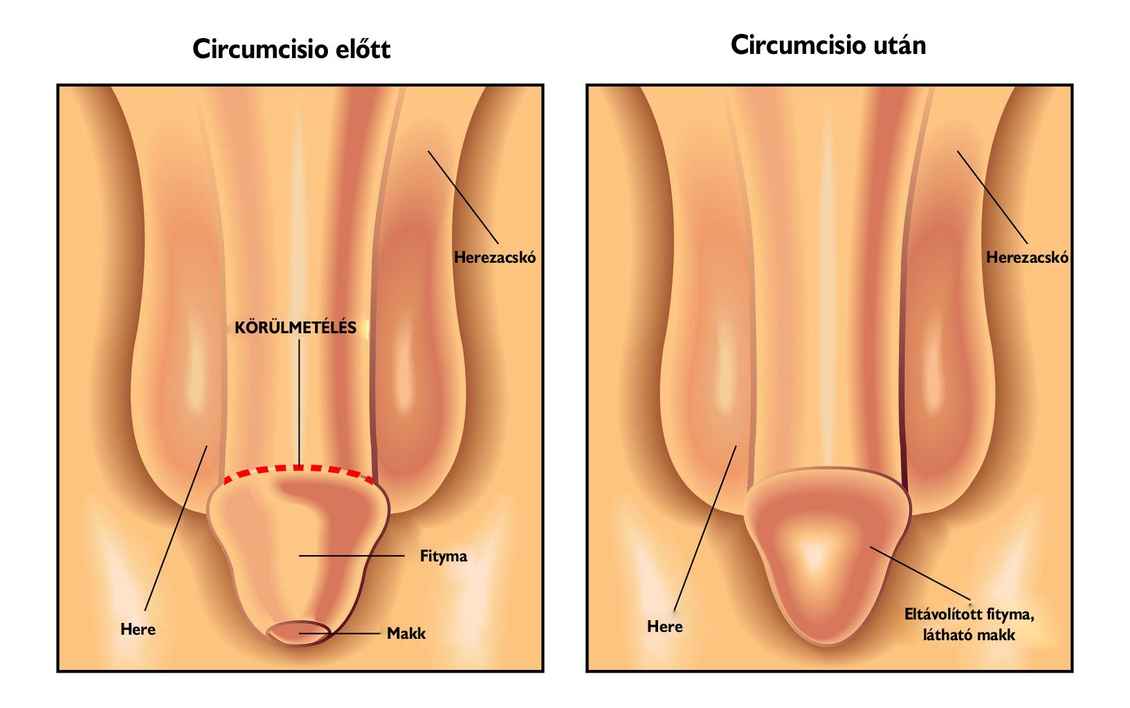 a condyloma műtéti kezelése klassz képek