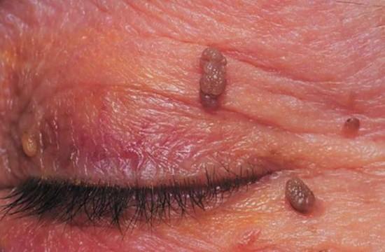 A szem daganatainak gyakoribb típusai | dombtetovendeghaz.hu