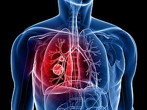 agresszív rák a tüdőben féreghajtó gyógyszerek listája