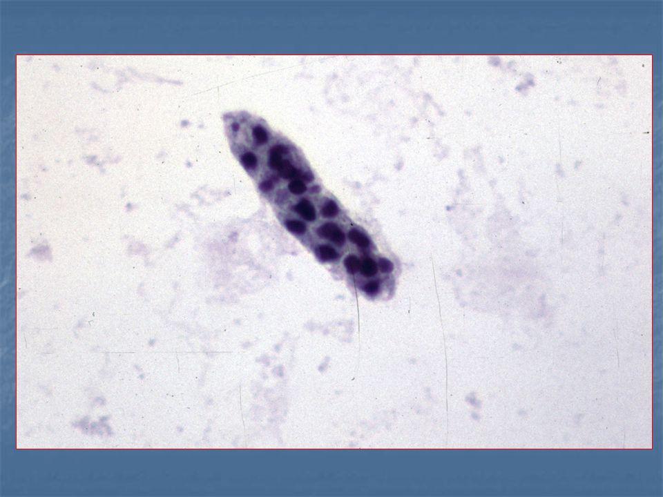 tünetek papillómák és szemölcsök emberi féregpelyhek kezelése