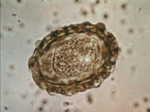 Mézgomba paraziták vagy saprotrofák. A gombák jellemzői