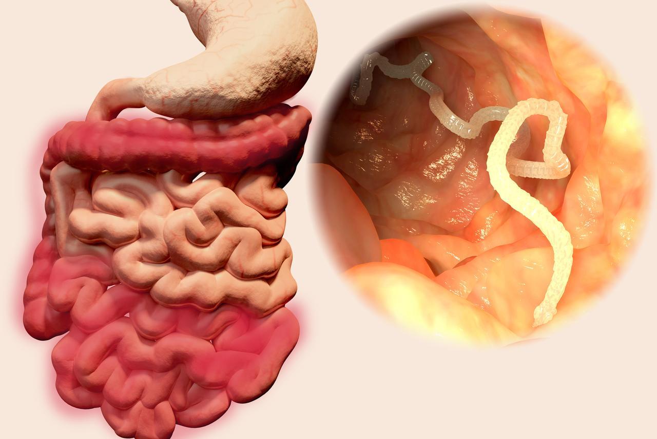 Bacteria giardia simptome - Gyógynövények a felnőttek giardiasisához
