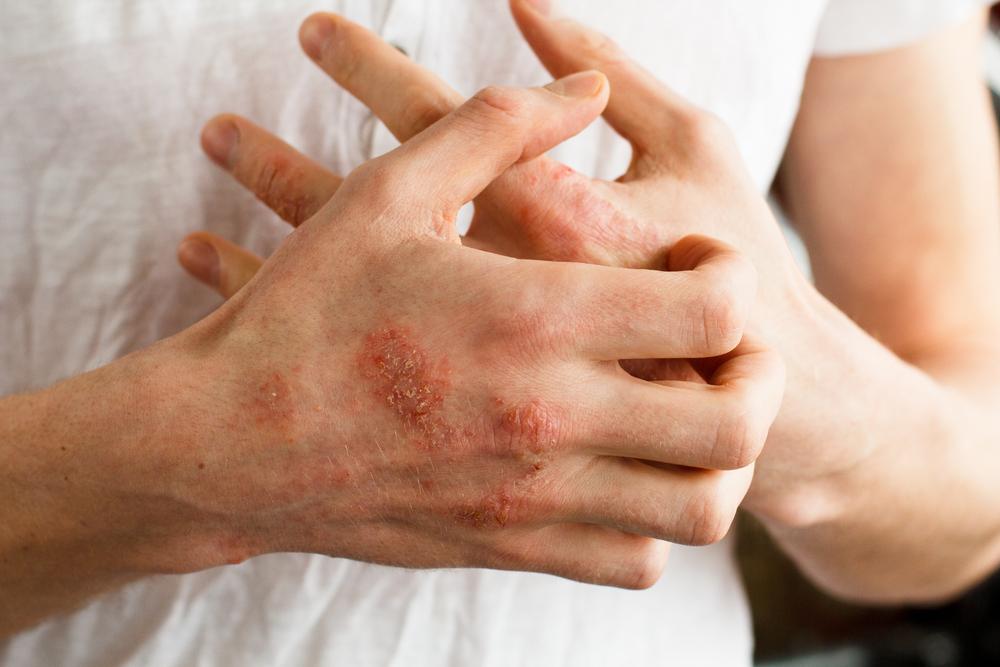 bőrkezelés az ujjak között
