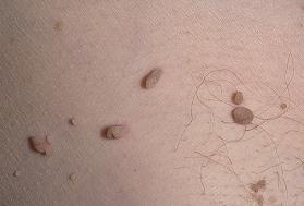 Papilloma megfeketedett és fájó: elszáradt, leesett - Myoma
