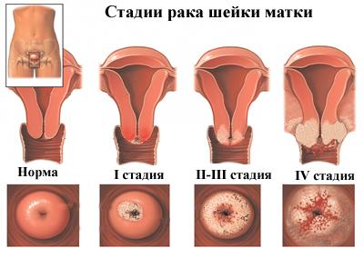 cauterize nemi szemölcsök